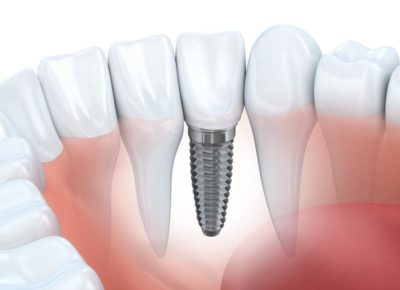 Dental Implants: No Other Tooth Replacement Option Functions or Looks More Like Natural Teeth