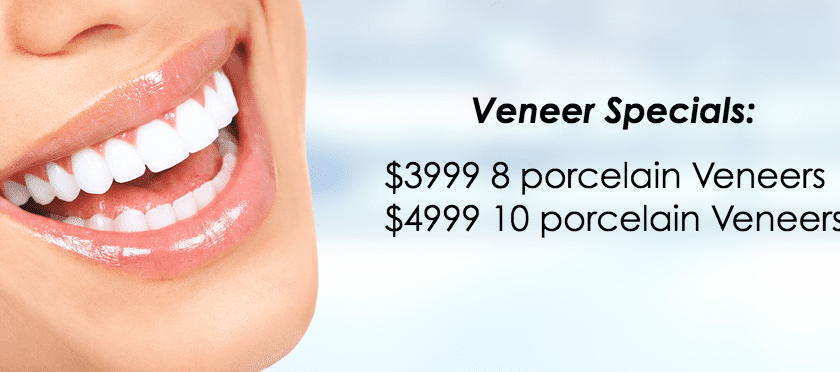 Veneers Specialist